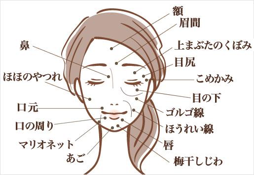 ヒアルロン酸が注入できる部位